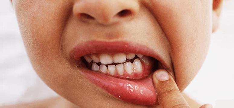 Гингивит у детей. Лечение воспаления десен у ребенка