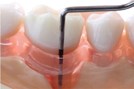 Гингивэктомия – цена, показания и методы проведения в области одного зуба