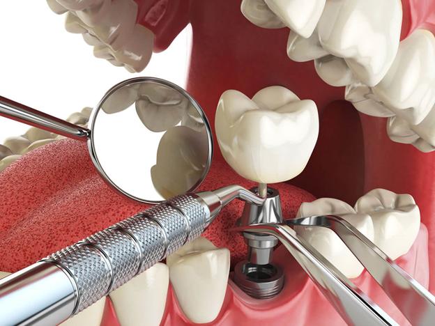 имплантация зубов в Троицке