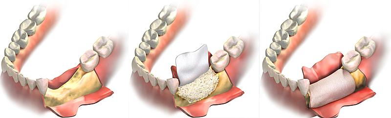 Костная пластика при имплантации зубов в Троицке