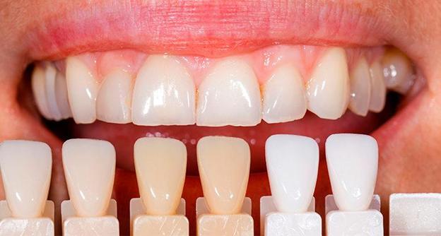 Установка виниров на зубы – установка, виды, цены в Москве, отзывы