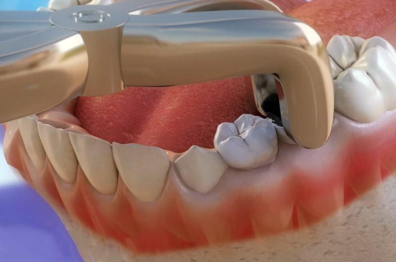 Удаление зубов. Безболезненное удаление зубов в Троицке