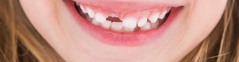 Удаление молочных зубов в Троицке