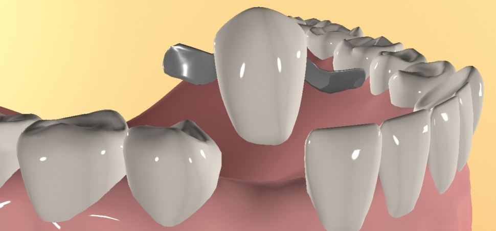 зубное протезирование мостовидными протезами