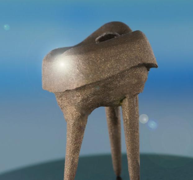 культевая вкладка в зуб