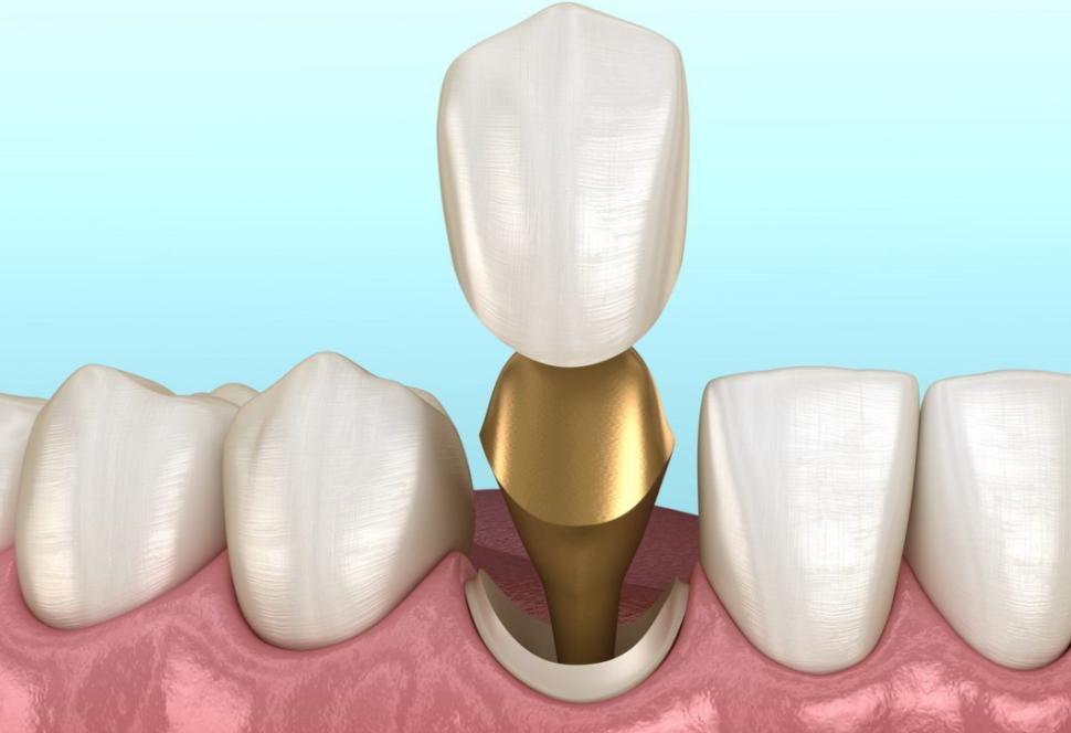 восстановление зуба культевой вкладкой