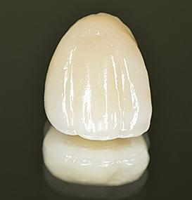 керамическая зубная коронка